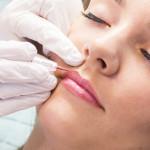 clairecontour-behandeling-lippen
